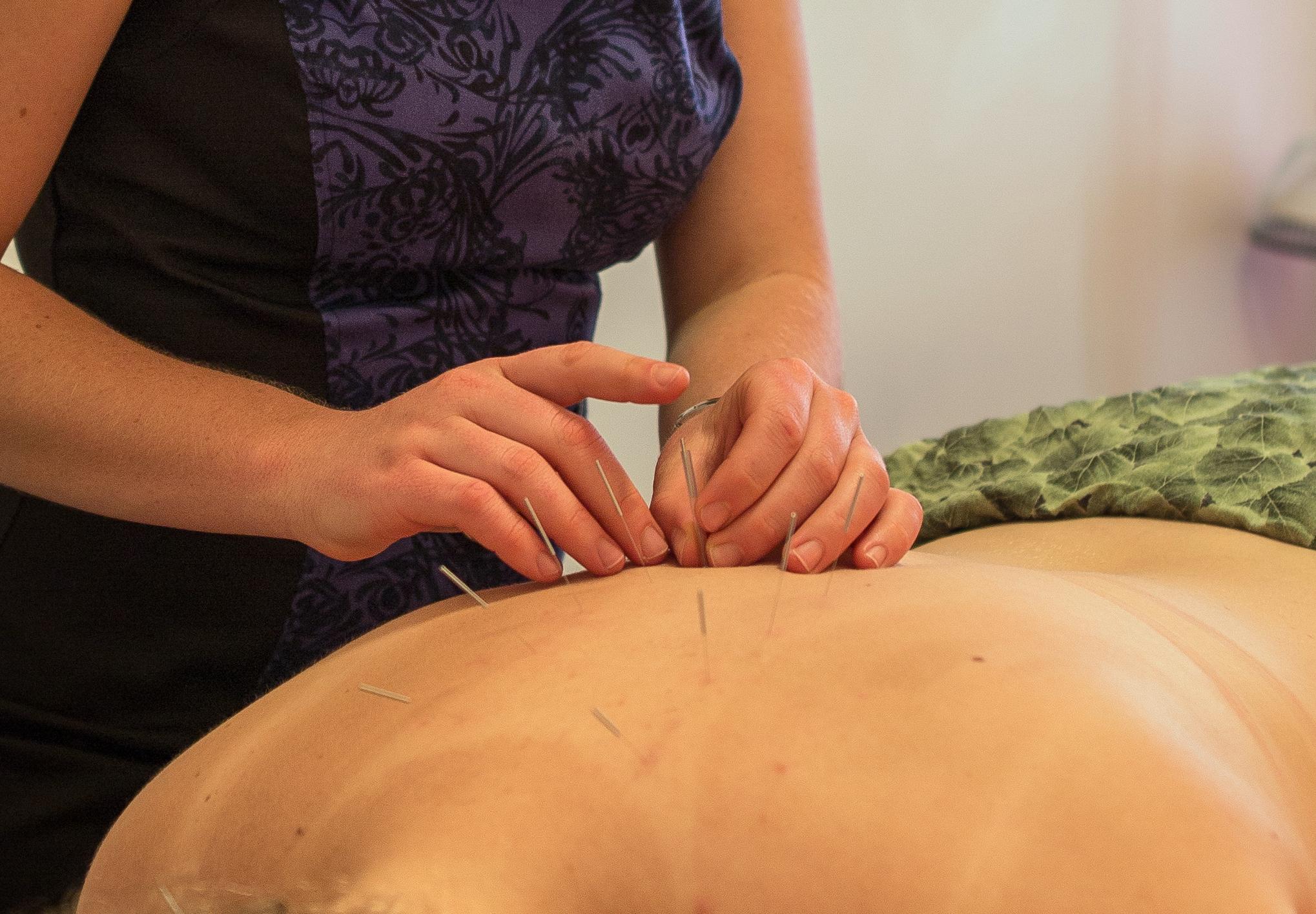 Acupuncture in Maroochydore, Sunshine Coast | Bloom ...